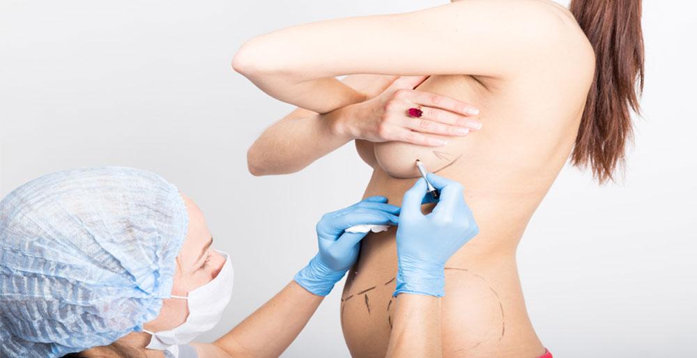 Woman getting ready for breast surgery - Pietro Di Mauro