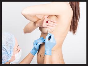 Woman getting ready for breast lift surgery - Pietro Di Mauro