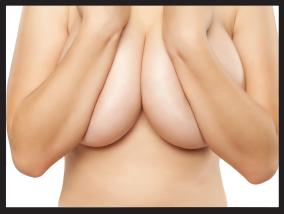 Woman before breast reduction - Pietro Di Mauro