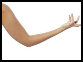 Successful arm lift surgery - Pietro Di Mauro