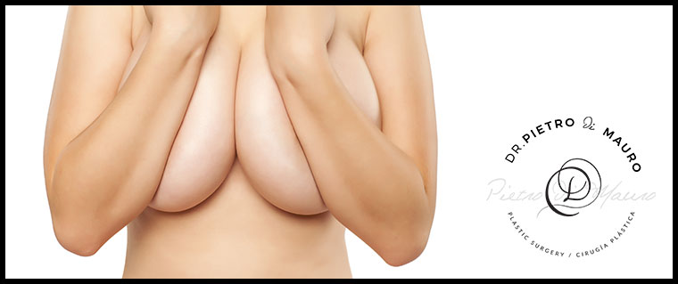 Breast Reduction - Pietro Di Mauro
