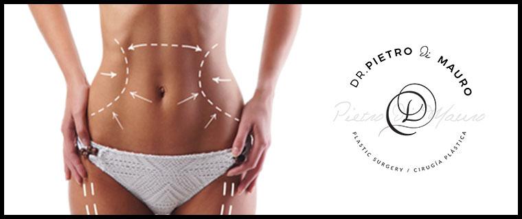 Liposuction - Pietro Di Mauro