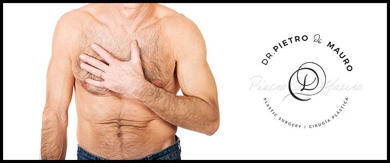 Male breast reduction - Pietro Di Mauro