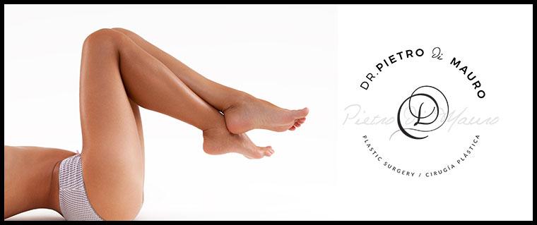 Beautiful legs after a successful thigh lift - Pietro Di Mauro