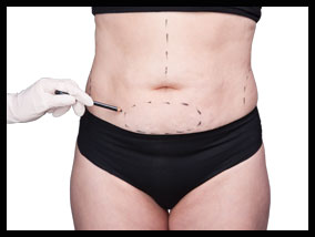 Girl getting ready for tummy tuck plastic surgery - Pietro Di Mauro
