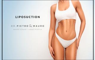 Liposuction Pietro Di Mauro